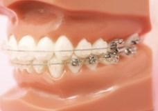 矯正歯科 歯列矯正